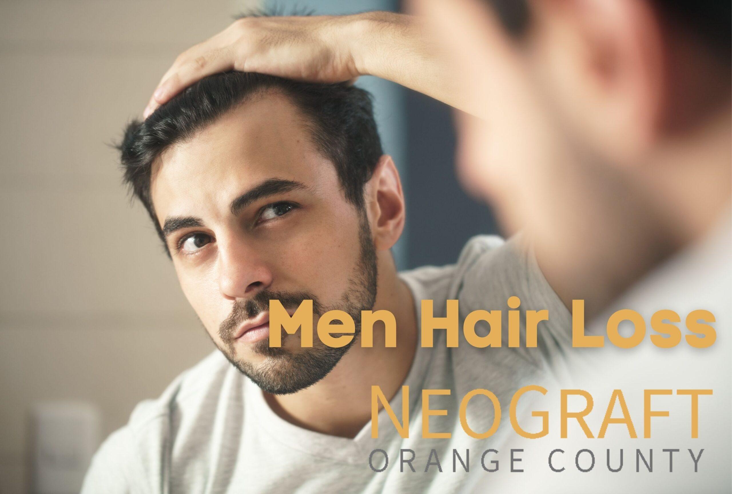Men Hair Loss Newport Beach