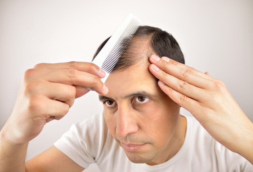 What's the Difference Between Hair Shedding and Hair Loss?